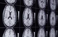 Siemens' New Medical Imaging Technology Could Improve Diagnoses, Save Time